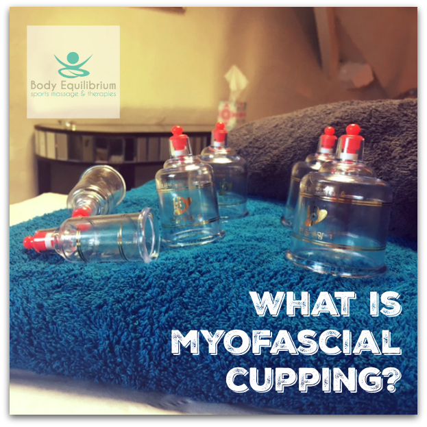 myofascial cupping daventry